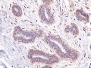 No tumoral. Expresion de LIPG en muestra de cancer de mama y en muestras de tejido no tumoral.