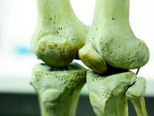 Huesos. Foto: UN.