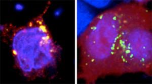 Foto portada: Imagen mostrando en amarillo la intensidad de la actividad autofágica de TMEM59 en presencia del gen normal (izquierda). Imagen del gen de riesgo para la Enfermedad de Crohn (derecha).
