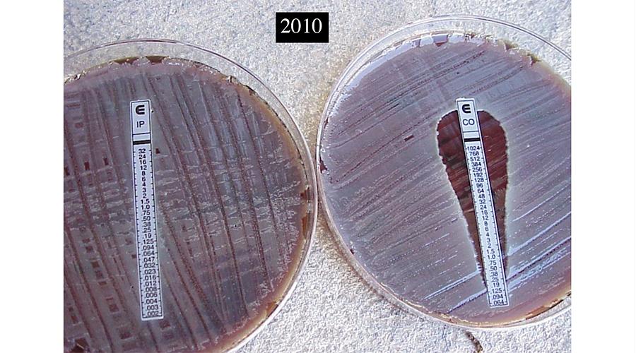 """Foto portada: """"Placa de Petri que muestra el crecimiento de A.Baumanni sin obstáculos, a pesar de estar sembrado con el más potente antimicrobiano conocido hasta fechas recientes: el meropenem. Pero terminaremos encontrando ese obstáculo."""""""