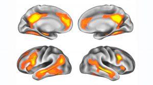 Foto portada: Áreas del cerebro con cambios morfológicos después del embarazo.